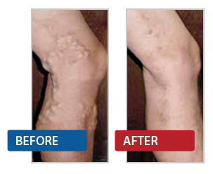 Sclerotherapy: Safe and Effective
